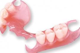 Protesis-removible-sin-ganchos